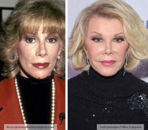 Joan-Rivers-Plastic-Surgery-Before-and-After
